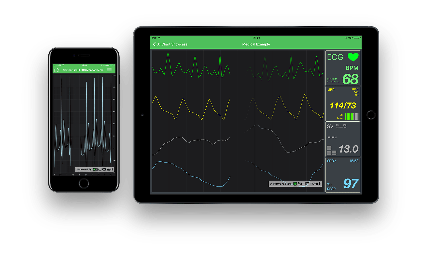 SciChart iOS Charts for ECG Medical Apps
